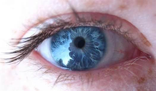 Doctor Offers Laser Treatment to Permanently Make Brown Eyes Blue