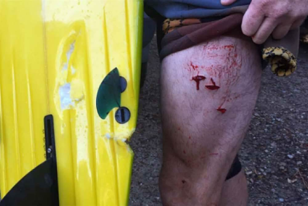 Another Shark Attack On NSW North Coast