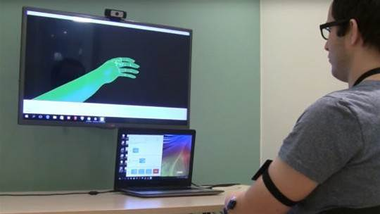 Augmented reality is helping amputees deal with phantom limb pain