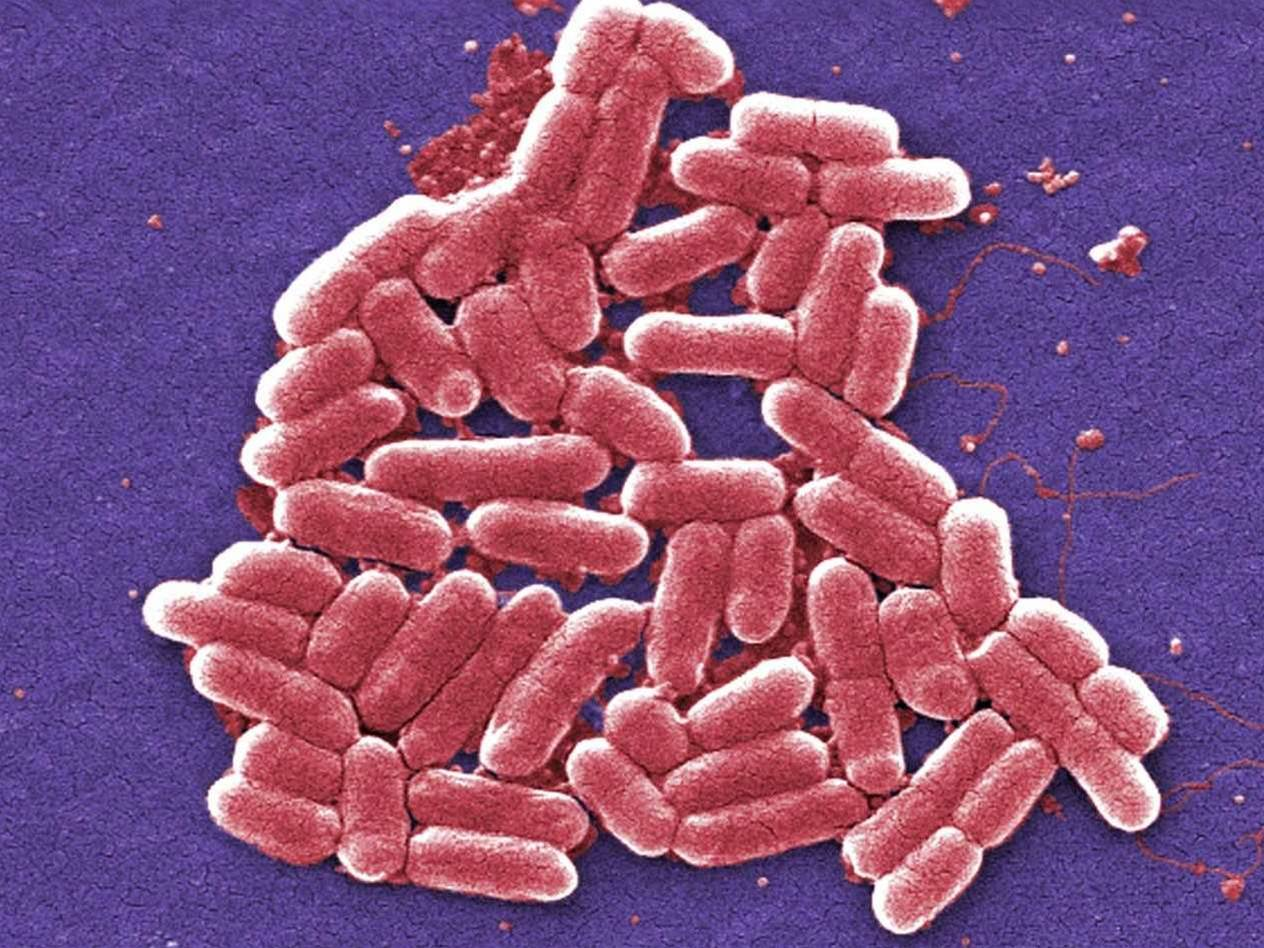 Redesigned E. Coli Resists Viruses And Might Make GMOs Safer
