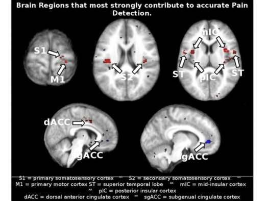 """Brain-Scanning """"Painometer"""" Is an Attempt to Measure Pain Objectively"""