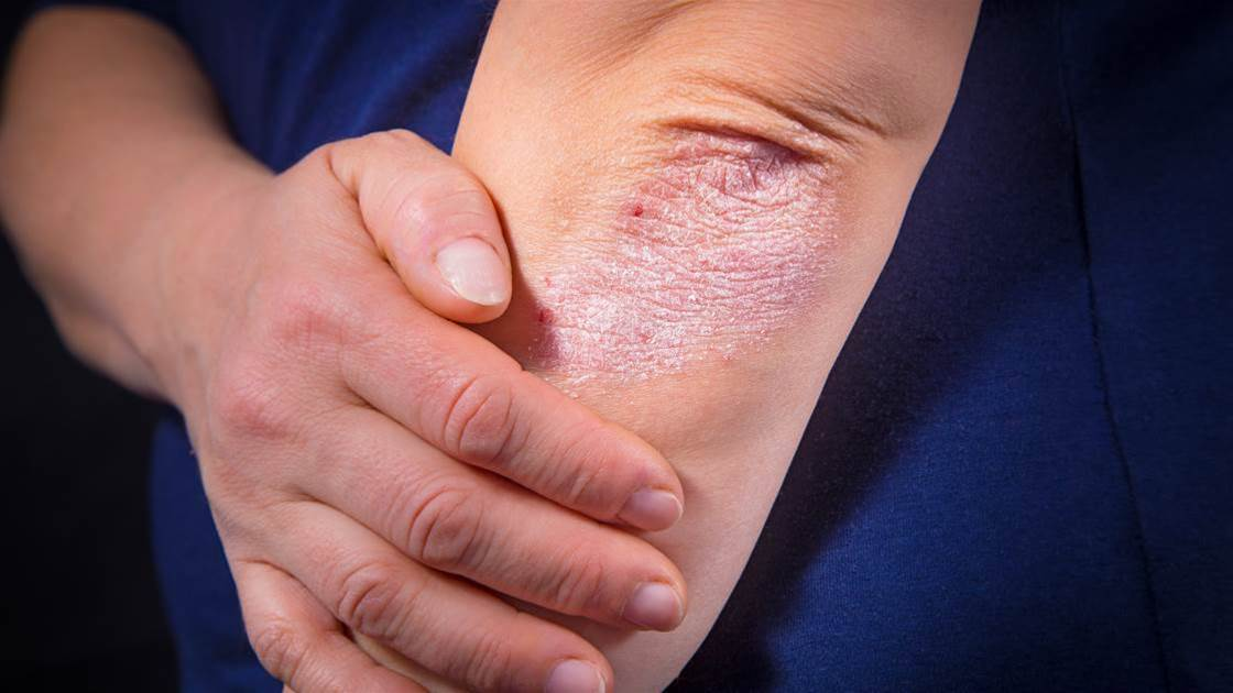 How Your Diet Can Make Your Psoriasis Symptoms Worse—And What To Do About It