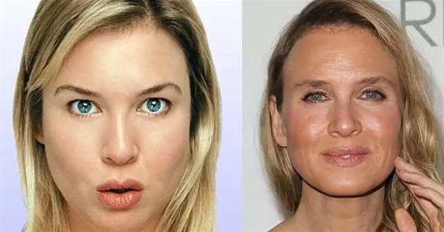 What Renee Zellweger's New Face Says About Your Brain