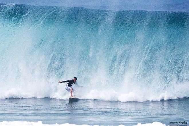 National Surf Injury Survey