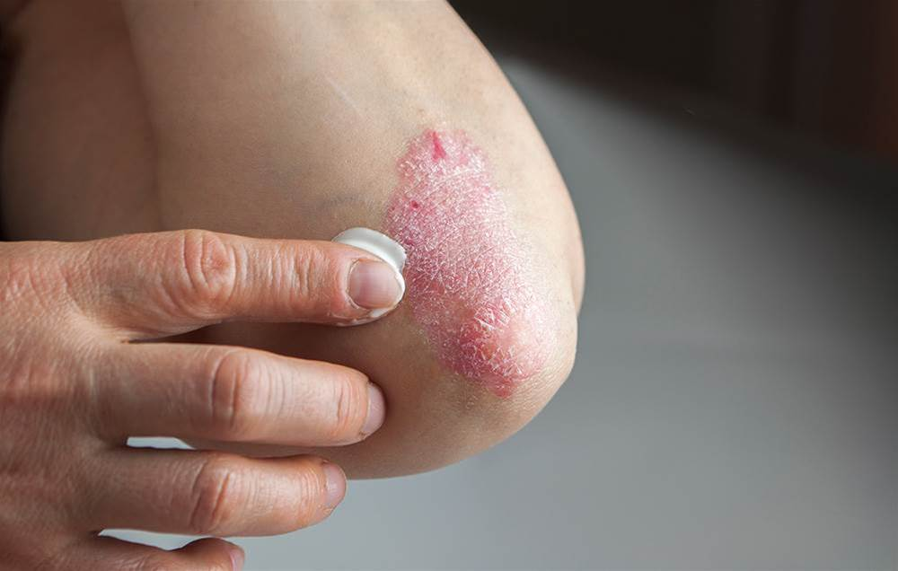 7 People Who Overcame Severe Eczema Share Their Steroid-Free Solutions