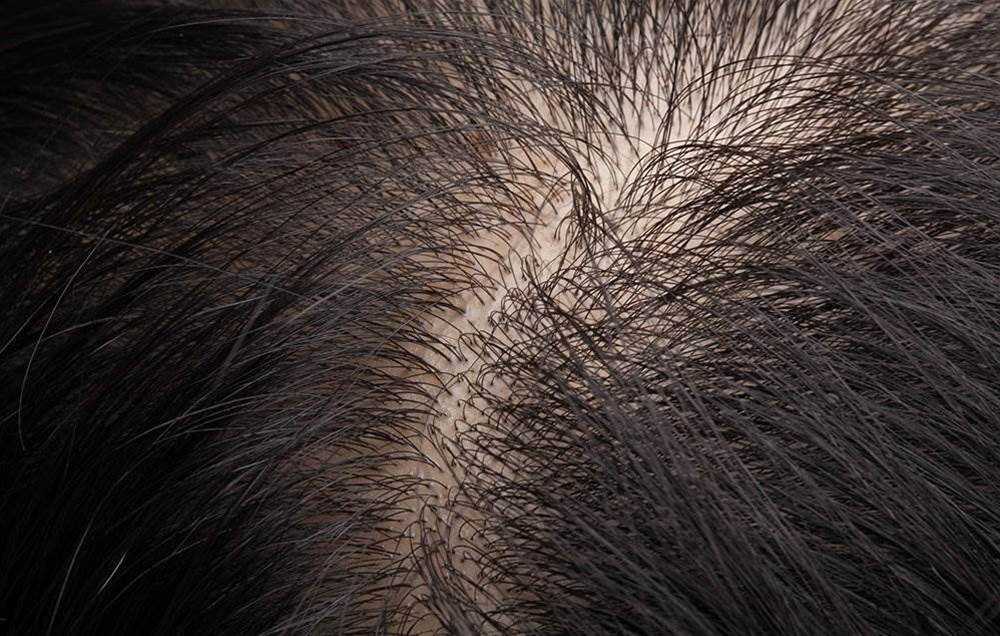 If Your Hair's Suddenly Feeling Thinner, Here's What Could Be Going On