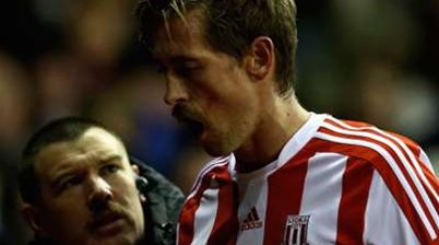 Crouch Loses Teeth In Coloccini Collision