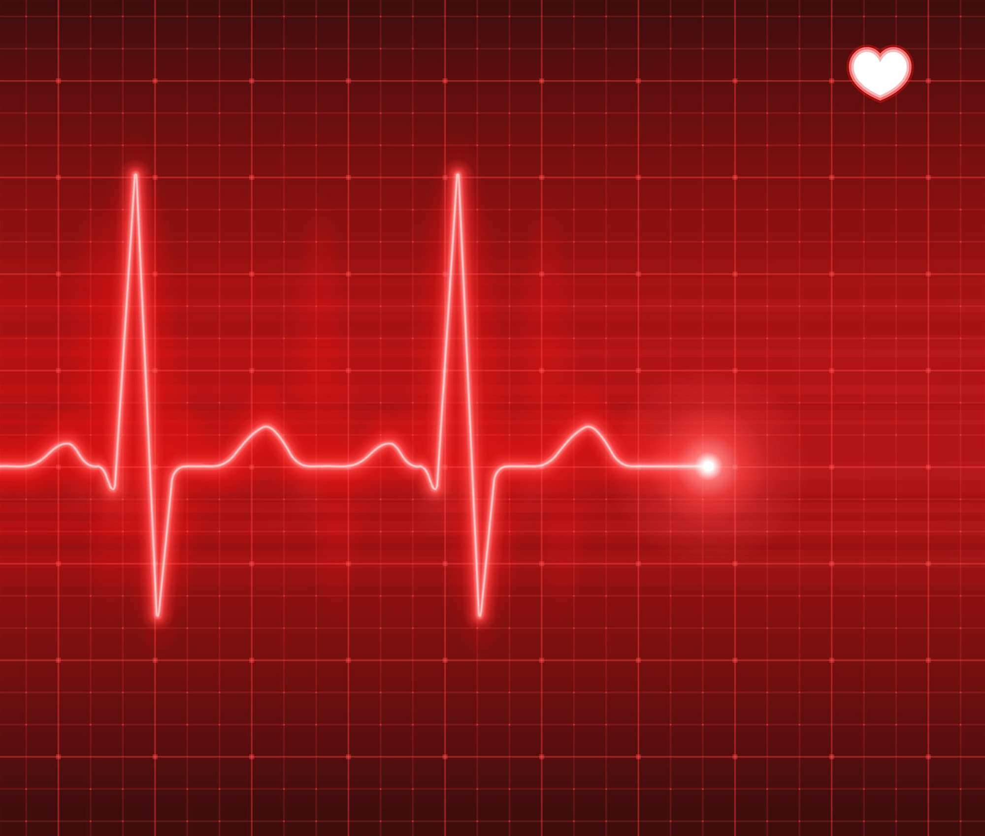 """Heartbleed remediation """"most behind"""" in Australia: report"""