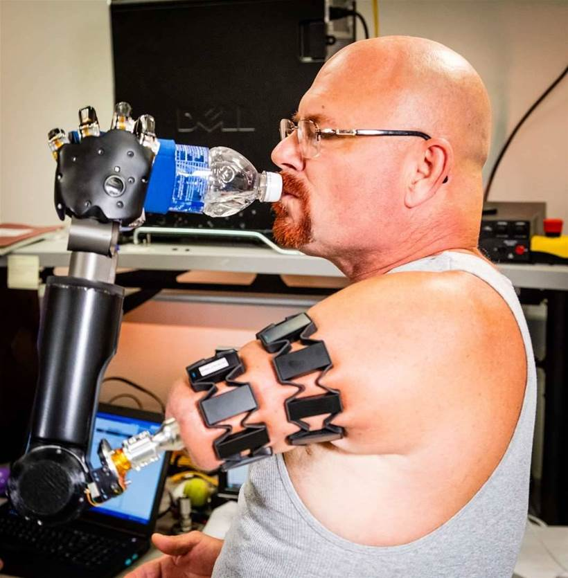 Myo wearable used to control prosthetics