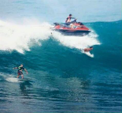 Breaking: Jet Ski Runs Over Surfer At Uluwatu