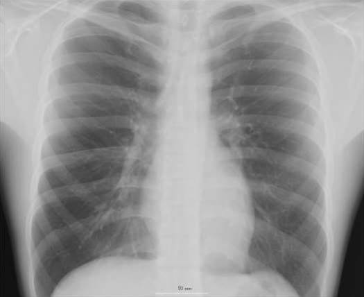 Doctors Who Work With X-Rays May Be Adapting at the Cellular Level to Withstand Radiation