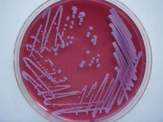 Bacteria Can Quickly Swap Genes With Each Other Through A Global Network