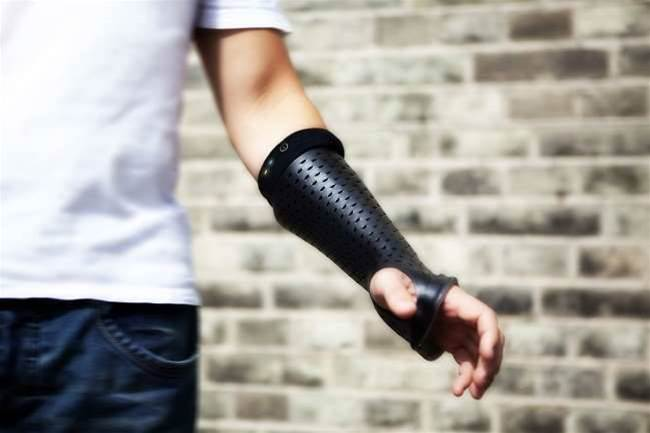 "Smart Cast ""Likes"" Your Broken Arm"
