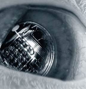 Augmented contact lenses hit significant milestone