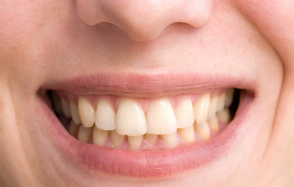6 Everyday Mistakes That Are Yellowing Your Teeth