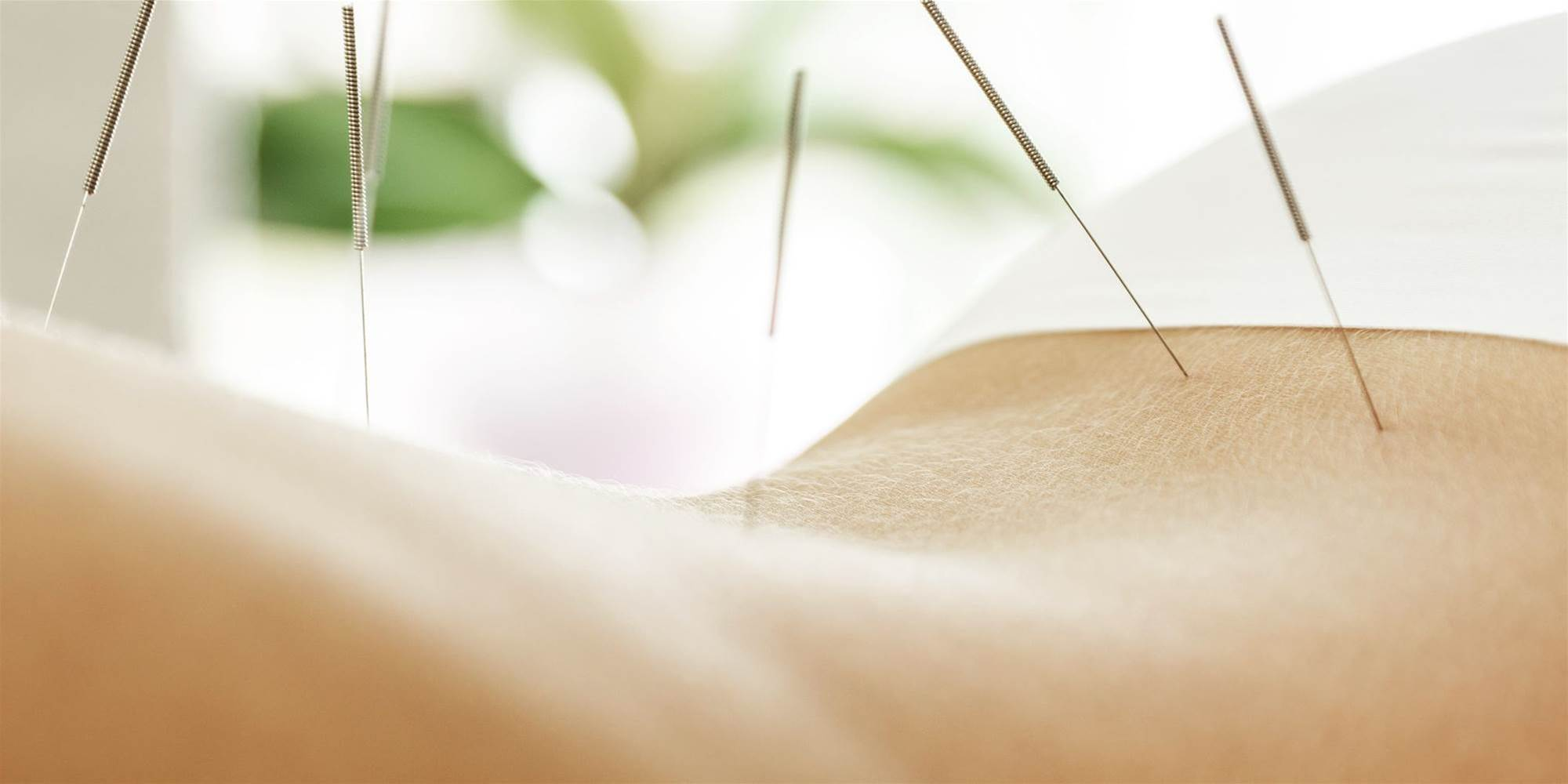 Acupuncture for Weight Loss: Does It Work?