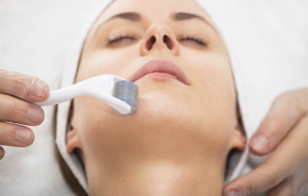 I Tried Microneedling To Stimulate Collagen In My Face