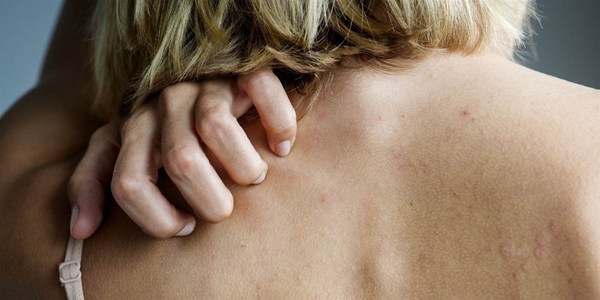 What Causes Psoriasis, Exactly?