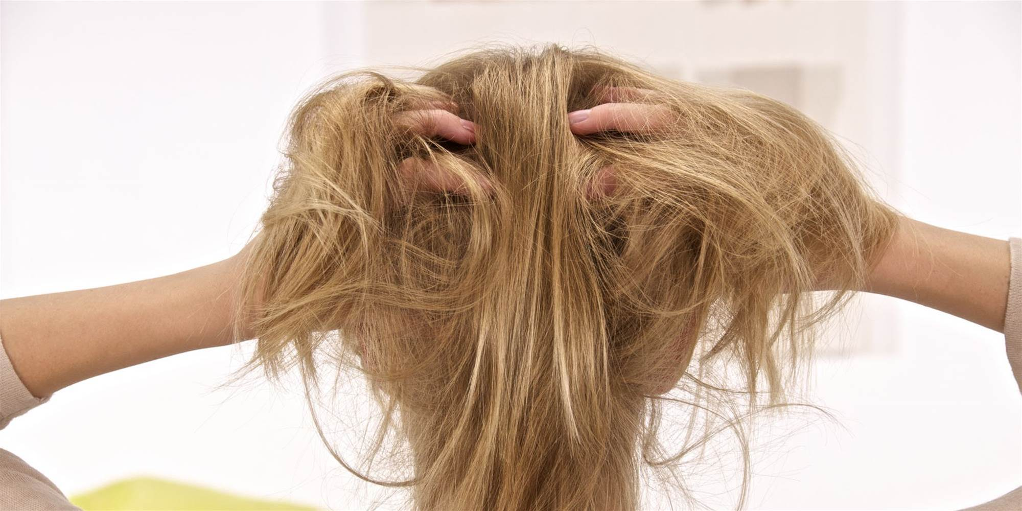 5 Proven Scalp Psoriasis Treatments Dermatologists Swear By