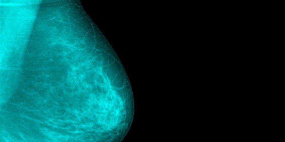 4 Breast Cancer Symptoms That Have Nothing to Do With Feeling a Lump
