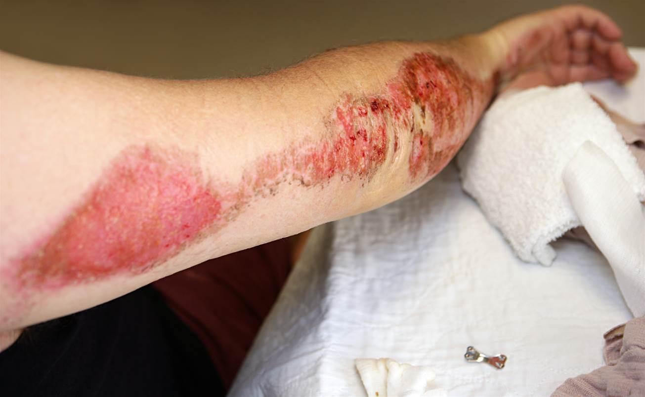 5 natural ways to heal road rash