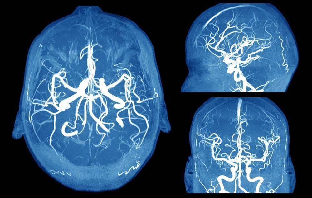 How To Spot A Brain Aneurysm Before It's Too Late