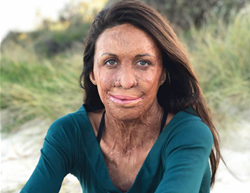 10 life lessons from Turia Pitt