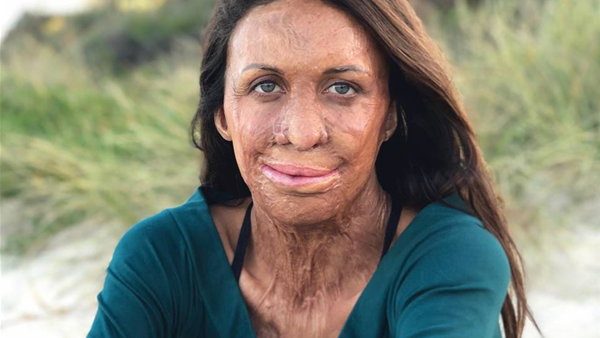 Bestselling Author, Burns Survivor & Two-time Ironwoman, Turia Pitt, on 10 Life Lessons She's Learnt