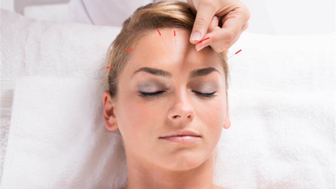 Can acupuncture reduce wrinkles?