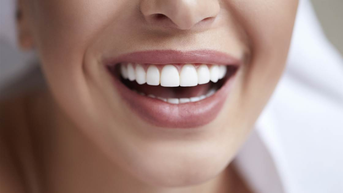 6 unexpected habits for healthy teeth