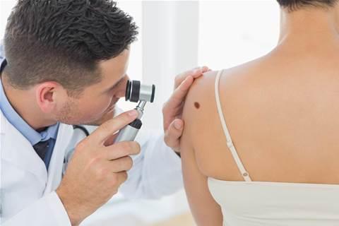 AI beats doctors at skin cancer diagnosis