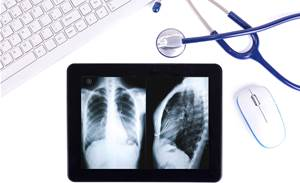 WA govt puts $8m towards ehealth record system planning