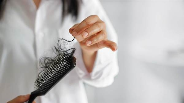 10 Causes of Hair Loss in Women