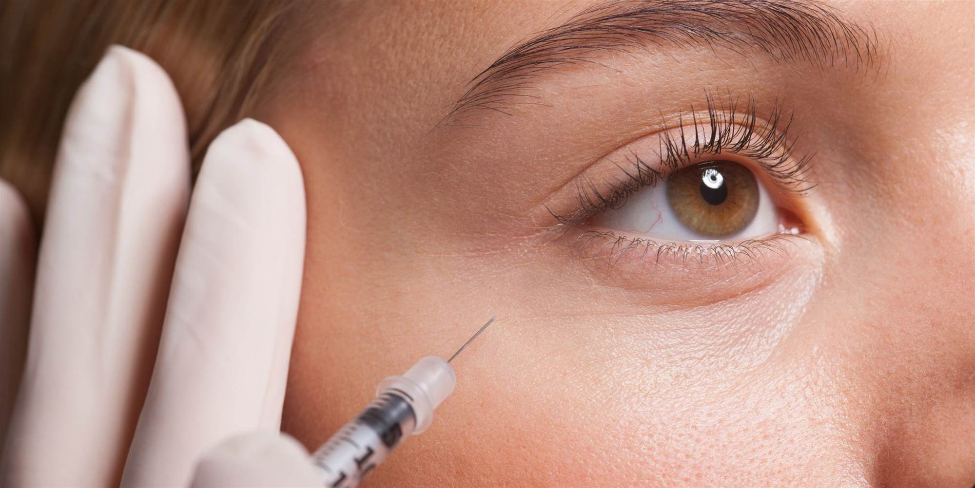 Dermatologists Answer All Your Botox Questions