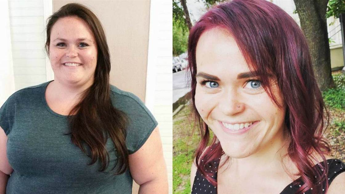 I Had Weight Loss Surgery to Lose 70kg