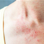 18 common skin rashes and how to identify them