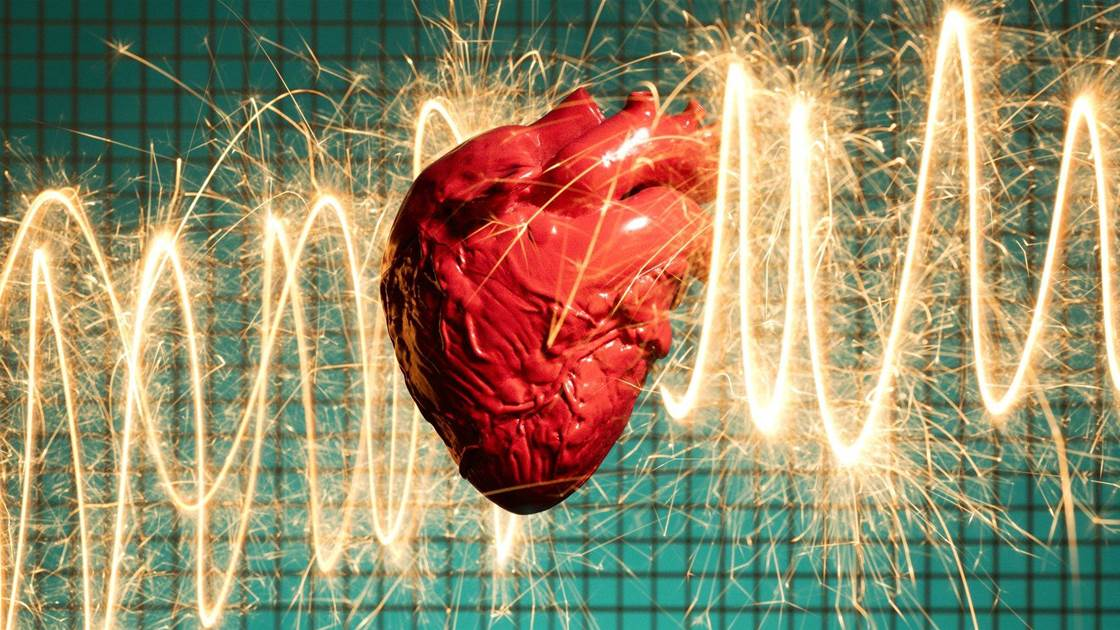 Heart Attack Symptoms Can Be Way Different for Women, Viral Tweet Warns