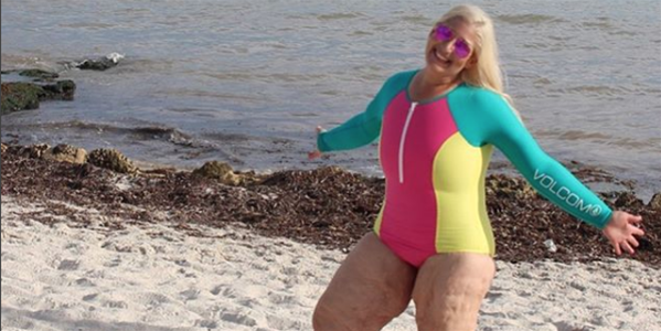 This Woman Dropped 160kg—And Is Documenting Her Struggle With Excess Skin