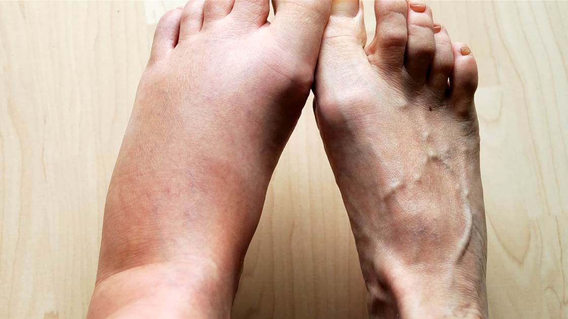 10 Reasons You Have Swollen Feet, Ankles, and Legs