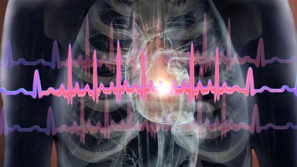 7 Subtle Heart Attack Symptoms Women Should Never Ignore