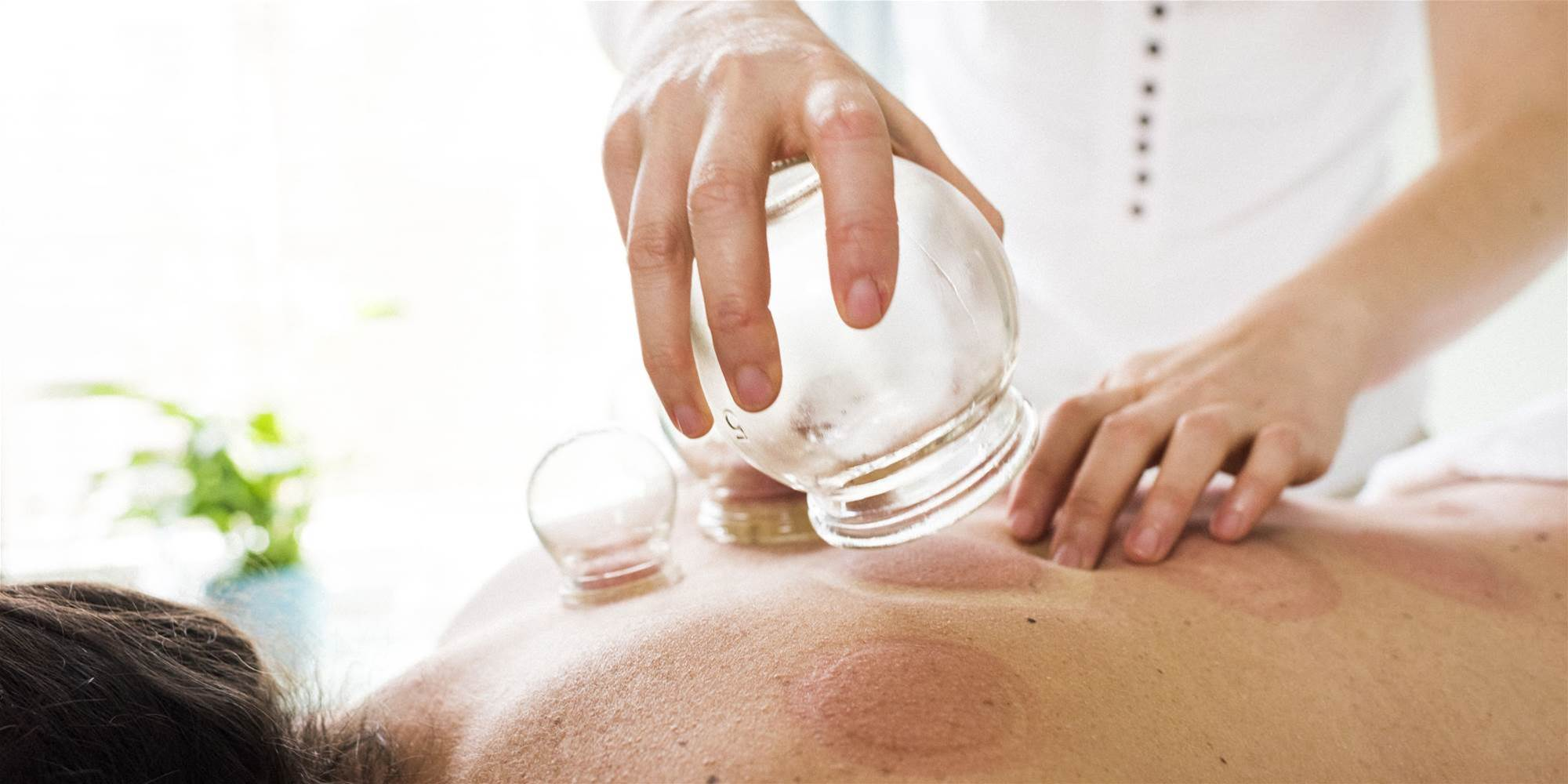 Everything You Need to Know About Cupping Therapy