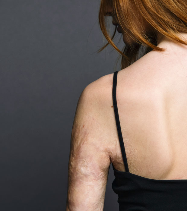woman with burn on arm